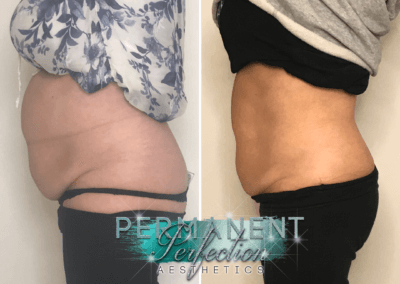 Fat Removal St Helens