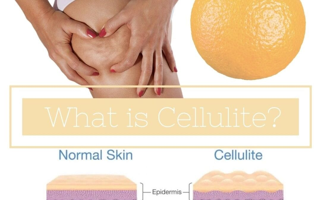 Cellulite removal in Chorley