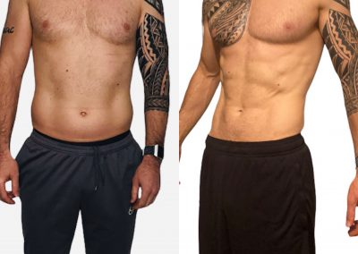 cryolipolysis in St Helens