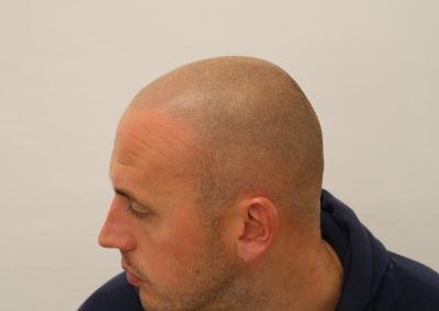 Scalp Micropigmentation Preston